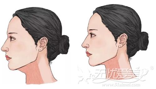 注射肉毒素改善双下巴
