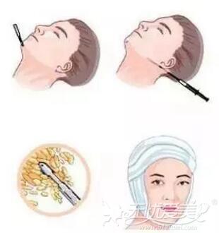 面部吸脂手术操作