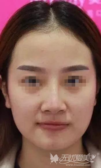 武汉爱思特假体隆鼻+肋软骨垫鼻尖修复术前