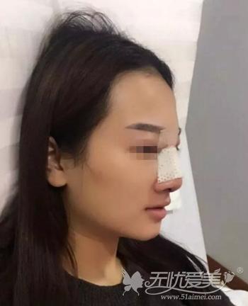 在武汉爱思特假体隆鼻+肋软骨垫鼻尖修复术当天