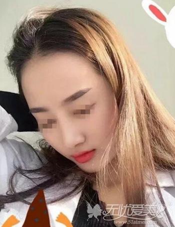 在武汉爱思特假体隆鼻+肋软骨垫鼻尖修复术后一个月