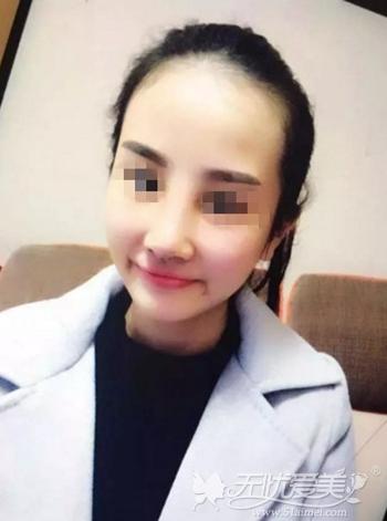在武汉爱思特假体隆鼻+肋软骨垫鼻尖修复术后一周