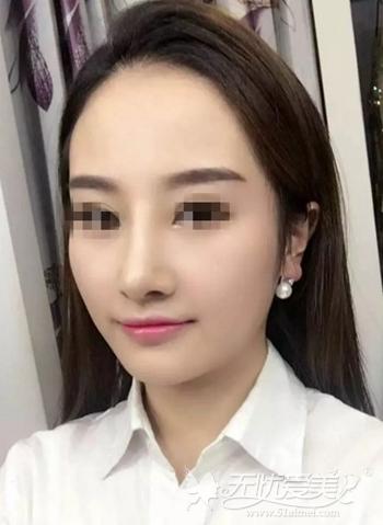 在武汉爱思特假体隆鼻+肋软骨垫鼻尖修复术后2个月