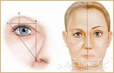 提眉术和切眉术的区别