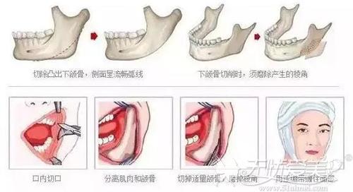下颌角磨骨手术原理
