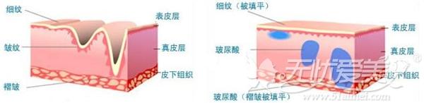 玻尿酸注射填充原理