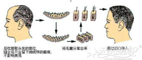 毛发移植手术原理
