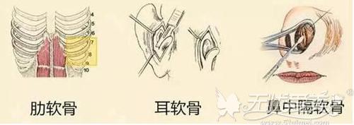 三种软骨耳软骨较受欢迎