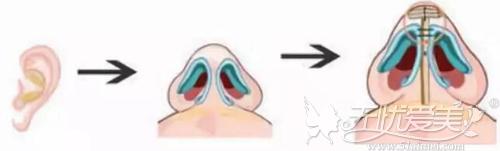 耳软骨的作用在垫鼻尖