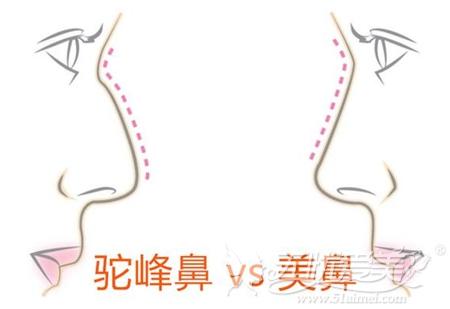 驼峰鼻和好看鼻型的对比