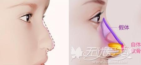 假体+自体软骨隆鼻改善中度驼峰鼻