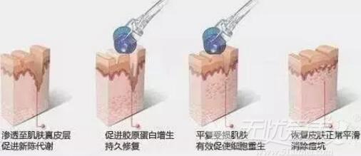 微针祛痘坑