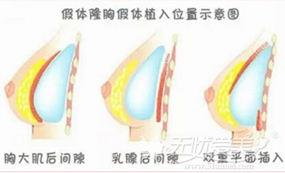 隆胸手术三种情况