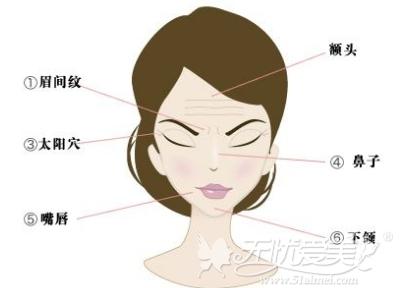 玻尿酸注射适合面部