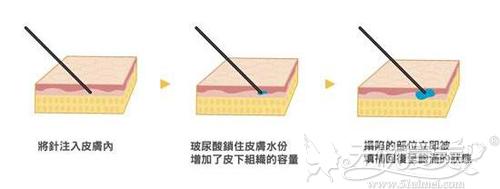 注射玻尿酸原理
