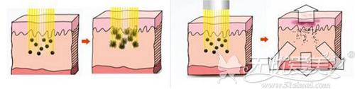激光祛斑的原理过程
