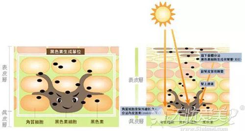 秋季紫外线对皮肤的伤害很大