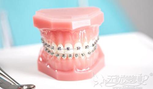 传统的钢丝牙套