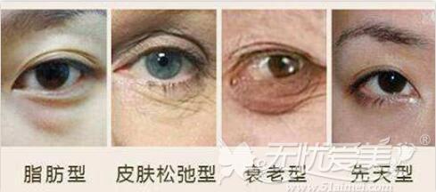 眼袋的类型