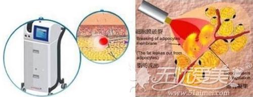 ACCU激光溶脂改善面部脂肪填充过多