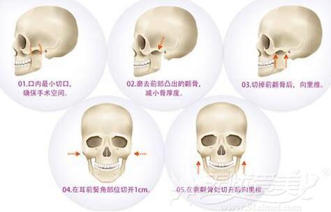 颧骨降低手术的原理