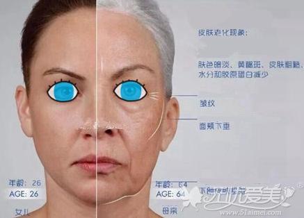 衰老引起的面部松垂