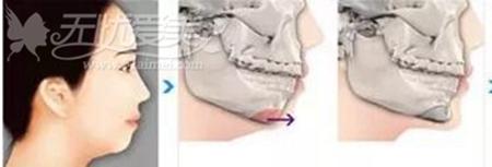 下颌角截骨后骨头还会长出来
