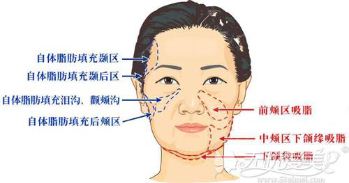 目前面部常见的吸脂部位
