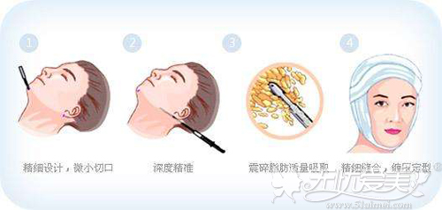 面部吸脂手术过程原理