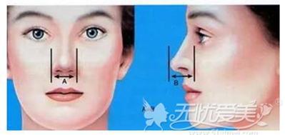 鼻综合手术标准