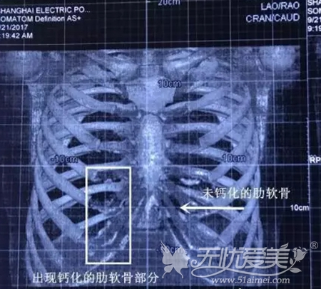 CT可以检查肋骨有没有钙化