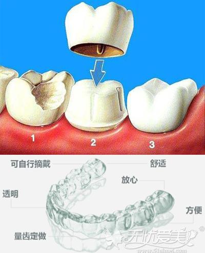 可以矫正龅牙的方法