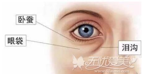 眼袋泪沟的位置