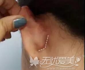 耳后可做下颌角手术切口