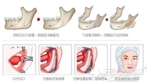 口内切除过宽下颌角方法
