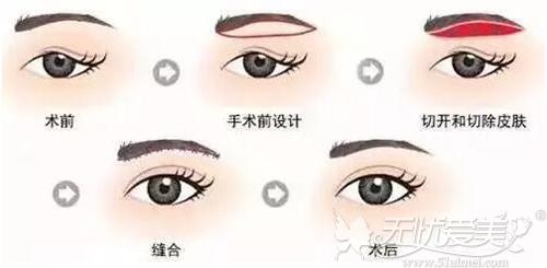 切眉手术改善上眼皮松弛
