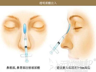 玻尿酸隆鼻的方法