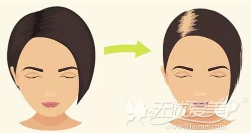 植发要根据个人的脱发情况而定