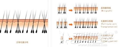 植发前和植发后的毛囊情况