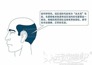 后脑勺的头发被称为长寿区