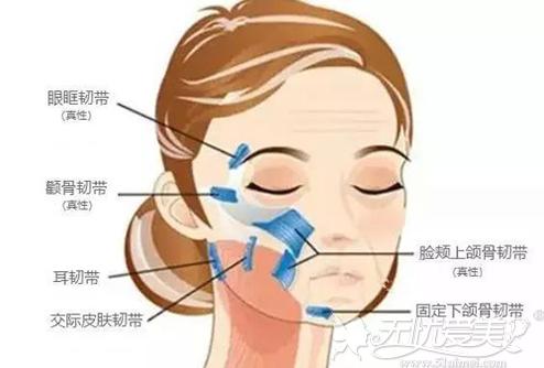 面部提升术操作的位置