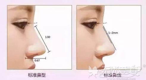 隆鼻美丽的标准