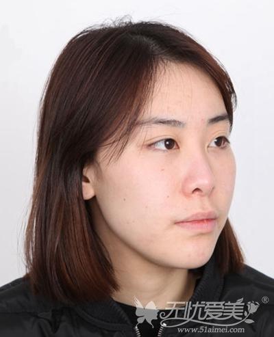 在韩国faceline做面部轮廓手术前