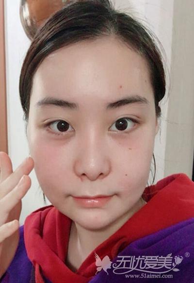 在韩国faceline做面部轮廓手术后1个月