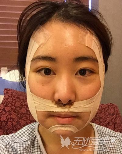 在韩国faceline做面部轮廓手术后2天
