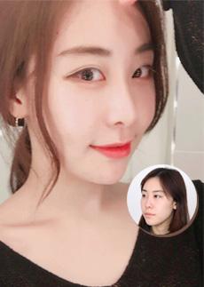 韩国faceline做面部轮廓术后拥有鹅蛋脸