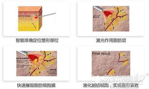 激光溶脂的手术原理