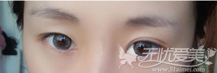 眼睛一单一双怎么改善