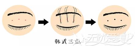 韩式三点双眼皮手术方法