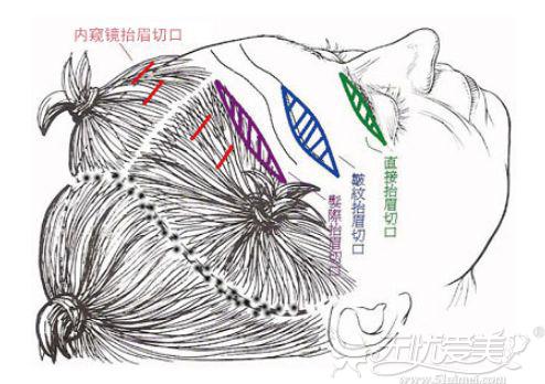 拉皮手术的切口选择位置